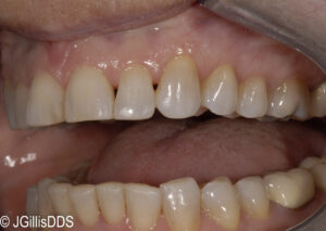 Minor tooth reshaping to improve the appearance and function of these teeth.