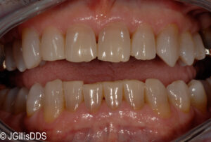 Jagged incisal edges of front teeth can safely have tooth shaping for a better appearance.