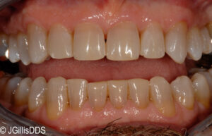 Jagged incisal edges of front teeth have had tooth shaping for a better appearance.