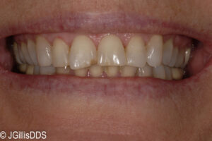 Existing front tooth too long so that reshaping could really improve the appearance.