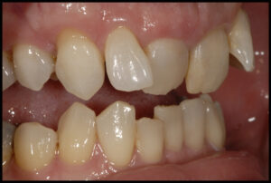 Clear Aligners mads a big difference for Chloe!