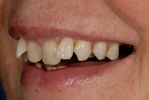 Misalignment detracts from the an otherwise healthy smile!