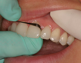 Using dental floss - good for cleaning below the gums. And, it's FUN!!