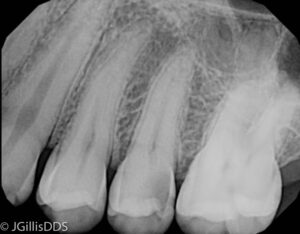 Cavity between teeth shows up on an x-ray as a dark shadow.