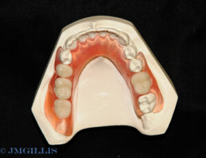 Flexible lower partial denture uses tooth-colored clasps for better aesthetics.