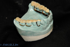 This overlay partial uses a tooth colored composite material to add height to the posterior teeth.