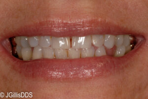 Our patient did not like the gaps present between her teeth or the missing lower tooth. Porcelain partial crowns, veneers and a bridge were the answer.