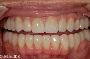 Porcelain partial crowns are very esthetic and natural looking.