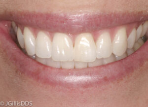 Definition of papilloma in dentistry. Definition of papilloma in dentistry - anaairporthotel.ro