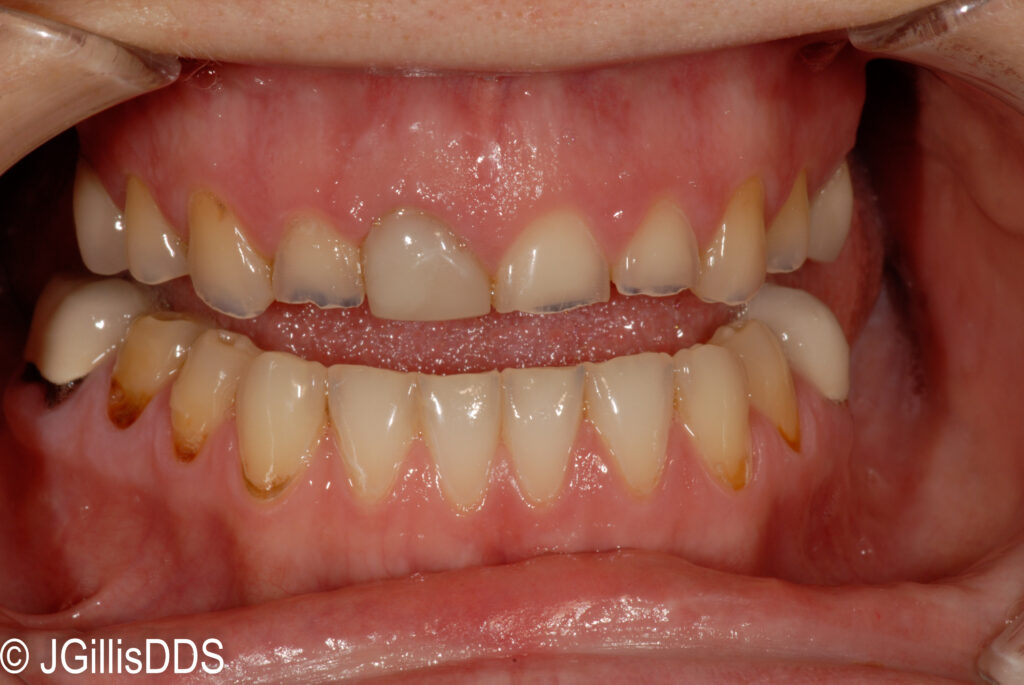 Severe wear and erosion of anterior teeth makes these teeth look very small.