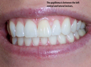 Small lump seen on gums between the central incisor and the lateral incisor is a gingival papilloma.
