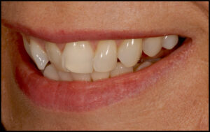 Severe crowding, flaring and tipping of teeth - corrected in one month with porcelain veneers.