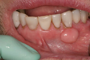 This tori is present on the lip side or buccal side of the teeth.