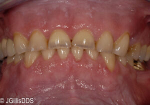 Severe wear into the softer dentin of both upper and lower teeth.