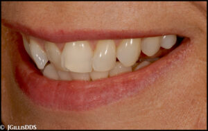 Crowded and poorly aligned teeth detract from this smile!