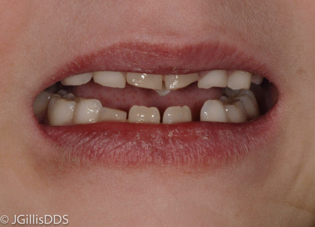 What Kind of Tooth is a Mesiodens? | Julie M  Gillis, DDS