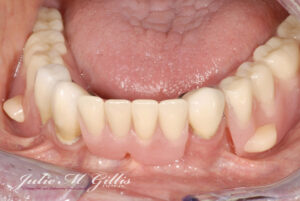 Implant Denture Image